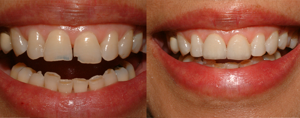 Cosmetic-Dentistry-in-Toronto-area