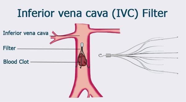 Vena-Cava-Filter