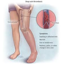 Ways-to-treat-Deep-Vein-Thrombosis