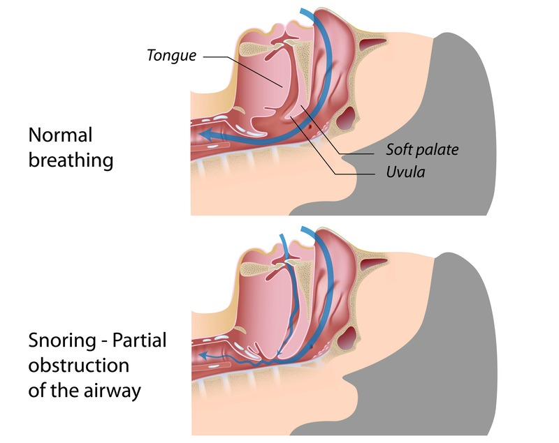 What-Causes-Snoring-And-What-You-Can-Do-About-It