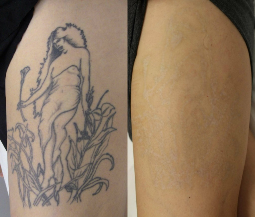 Tattoo-Removal
