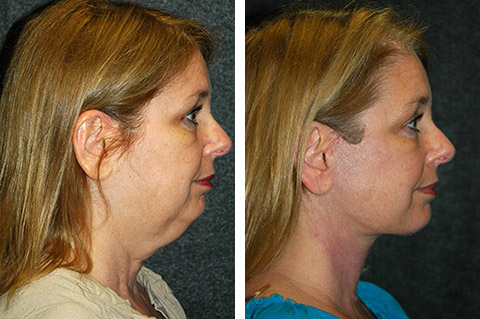 mini-facelift-before-and-after
