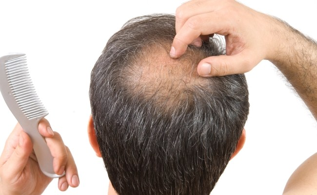 Improve Scalp condition and Blood Circulation